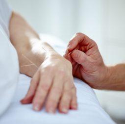 corporate wellness acupuncture uk